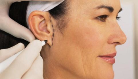 Kepçe Kulak Estetik Fiyatları